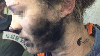 The curious case of the exploding headphones left  its mark on this shocked airline passenger's face